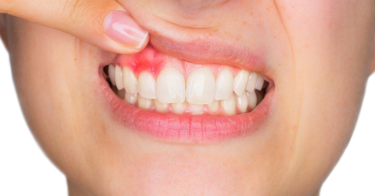 Types of Gum Disease | Smile Design Center of Westchester