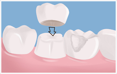 Dental Crowns Purpose, Procedure, Complications | Smile Design Center