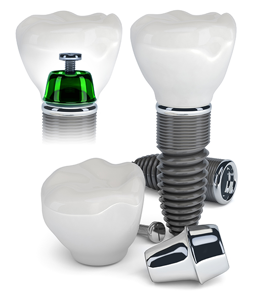 Dental Implants Advantages, Risks | Smile Design Center of Westchester