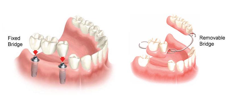 Fixed & Removable Dental Bridges | Smile Design Center of Westchester