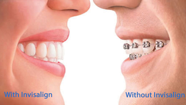Invisalign Clear Aligners | Smile Design Center of Westchester
